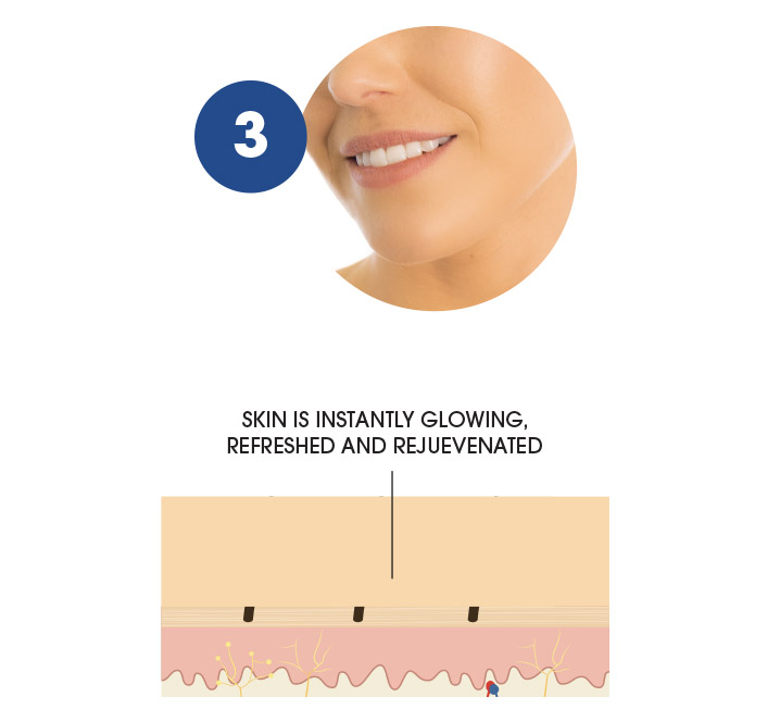 How the Manicare dermaSMOOTH works